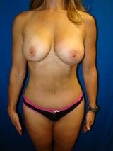 Tummy Tuck (Abdominoplasty),Breast Augmentation, Mommy Makeover, Liposuction after 404209