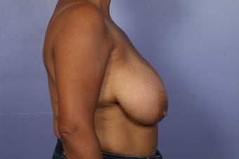 Breast Reduction before 526781