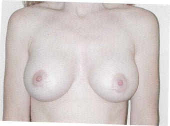 Breast lift with augmentation after 633947