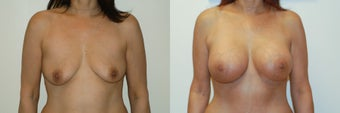 Breast augmentation with silicone breast implants before 143250