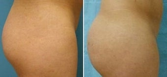 Buttock Augmentation  before 110106