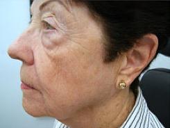 Fractional laser therapy after 460039
