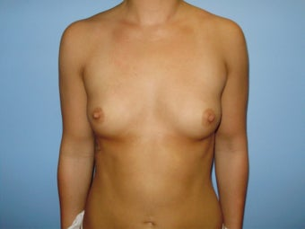 Breast Augmentation before 232466