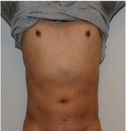 Smartlipo Abdomen  after 123636