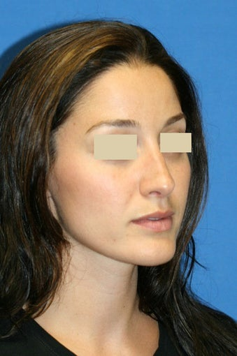 Rhinoplasty Gallery after 129745