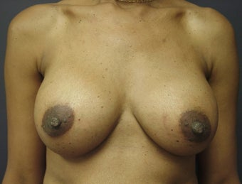 Breast Augmentation  after 465538