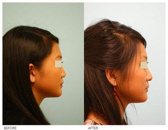 Asian Rhinoplasty before 136824