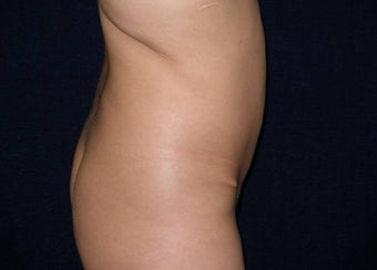 Tummy Tuck Revision before 550597