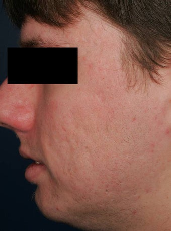 Fraxel - acne scars after 136199