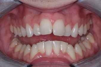 Invisalign before 372767