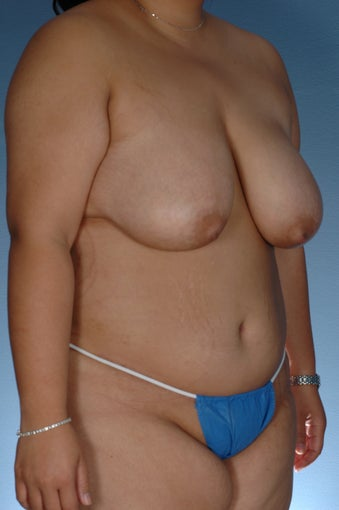 Extended Tummy Tuck and Liposuction Waist after 364830