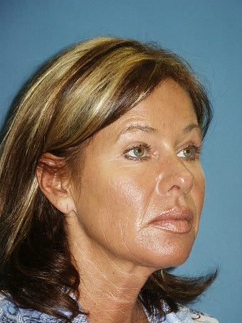 Facelift, Endoscopic Browlift, Upper and Lower Blepharoplasty before 248938