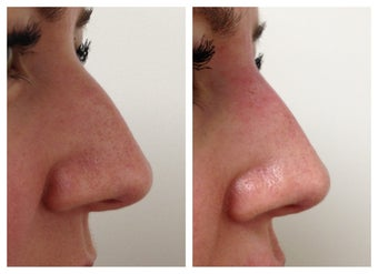 Non-surgical nose job before 515626