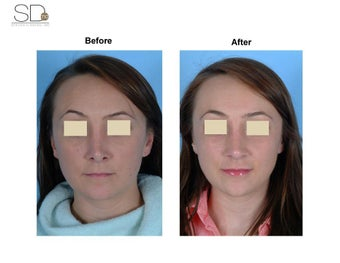 Revision Rhinoplasty  before 100949