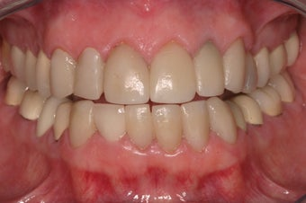 replacement of old restorations and new smile design before 330060