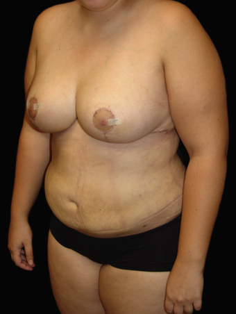 Breast Reduction/Lift and Tummy Liposuction after 230751