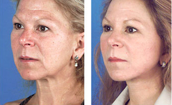 Face lift and other facial plastic surgery age 46 before 6738