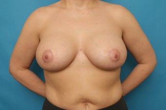 Bilateral Breast Augmentation with Breast Lift after Weight Loss after 375312