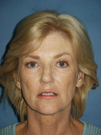 Facelift, Endoscopic Browlift, Upper and Lower Blepharoplasty, Lip Augmentation with Fat injections before 248853