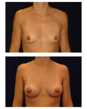 Breast Augmentation before 149515