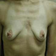 Breast Augmentation before 139572