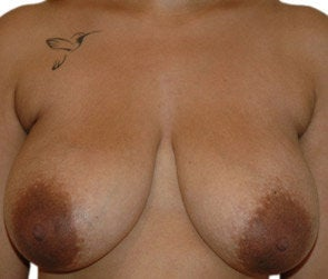 Breast Reduction / Breast Lift before 550299