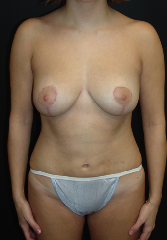 Breast Lift and Tummy Liposuction after 230737