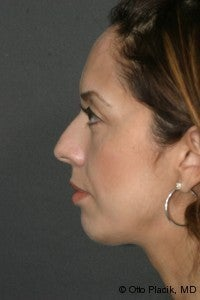 Chin Augmentation  after 565883