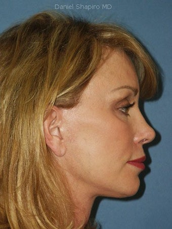 Facelift, Endoscopic Browlift, Chemical Peel to the Lower Eyelids after 248886