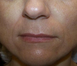 Juvederm before 87081