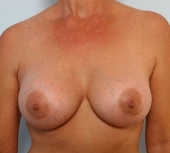 Breast Augmentation after 260907