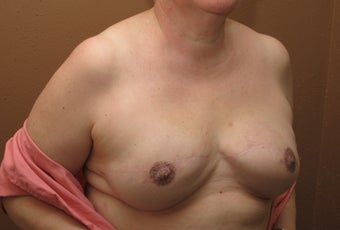 Bilateral reconstruction of the breast with expanders/implants 557774