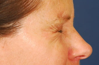 Botox Treatment of crow's feet before 492293