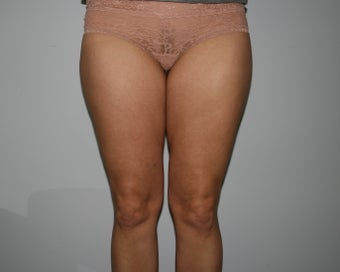 Liposuction of the Hips and Thighs before 644849