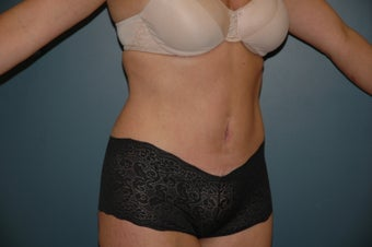 Tummy tuck after 144255