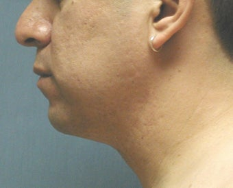chin liposuction after 409998