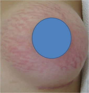 Vascular Laser for Red Stretch Marks of the breast before 82436