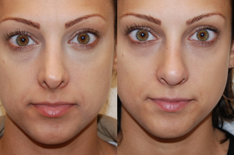 Non-Surgical Rhinoplasty with Silikon-1000 before 93772