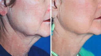Titan Neck Treatment before 330869