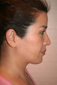 Asian Rhinoplasty after 448671