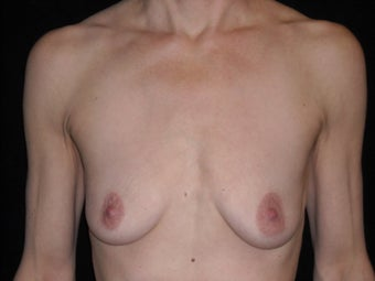 Breast augmentation before 381904