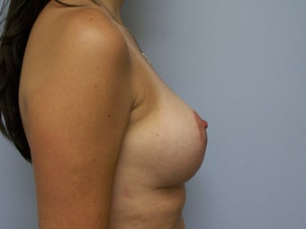 Breast Implant removal and breast lift after 589928