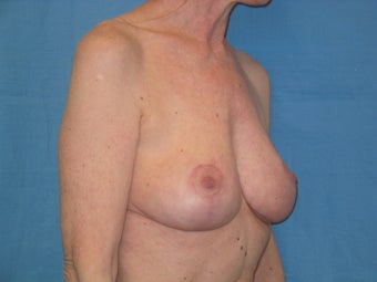 Mastopexy after 510749