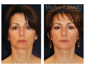 Chin Liposuction before 391524