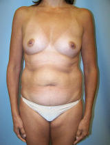 Tummy Tuck Surgery (abdominoplasty) and Augmentation before 129708