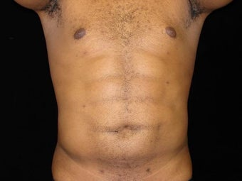Liposuction of Abdomen, Waist, Flanks, Pecs with 6 Pack Abdominal Etching after 203529