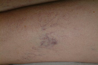 Sclerotherapy before 95916