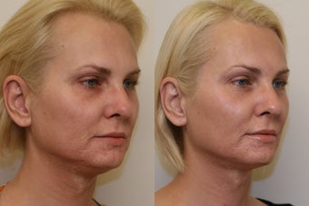 Ultherapy before 532607