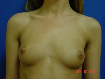 Woman in her mid twenties treated for uneven size and shape before 621531