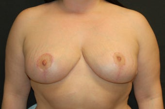 Breast Reduction after 274558